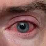 Covid y salud visual